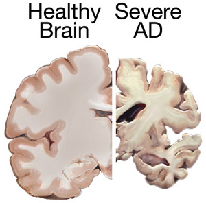 Contrast healthy brain with severe Alzheimers: image from ADEAR